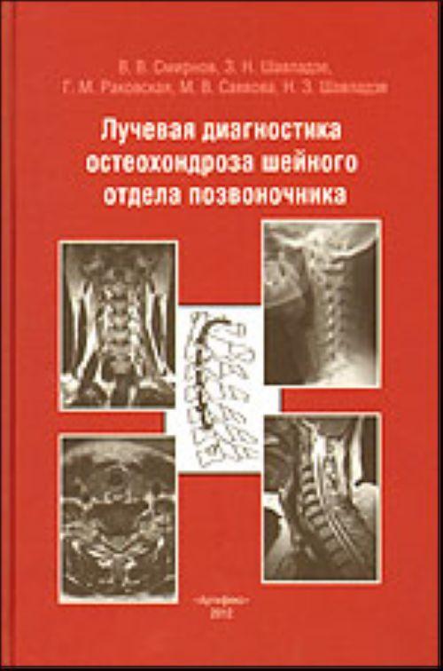 Таблетки от остеохондроза шейного отдела список