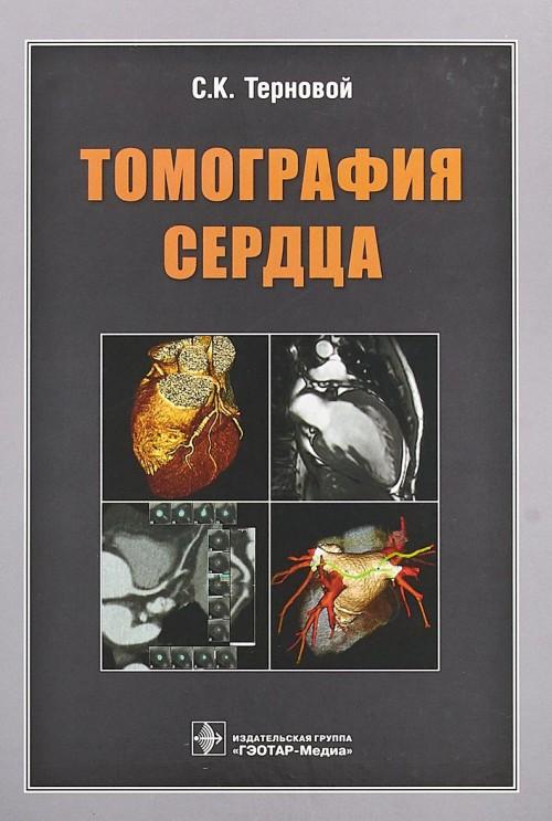 Tomografija serdtsa
