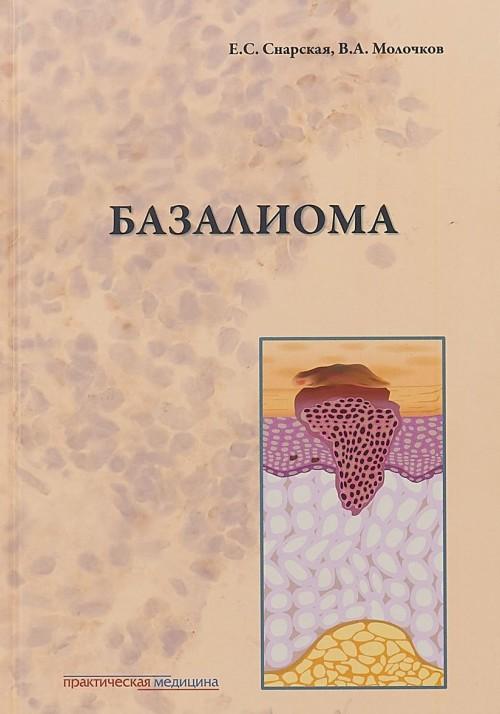 Bazalioma