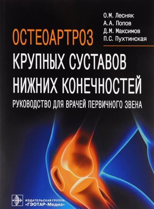 Osteoartroz krupnykh sustavov nizhnikh konechnostej. Rukovodstvo dlja vrachej pervichnogo zvena